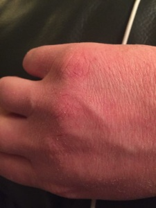 Dry, cracked skin on hands